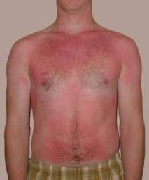 sol-eczema